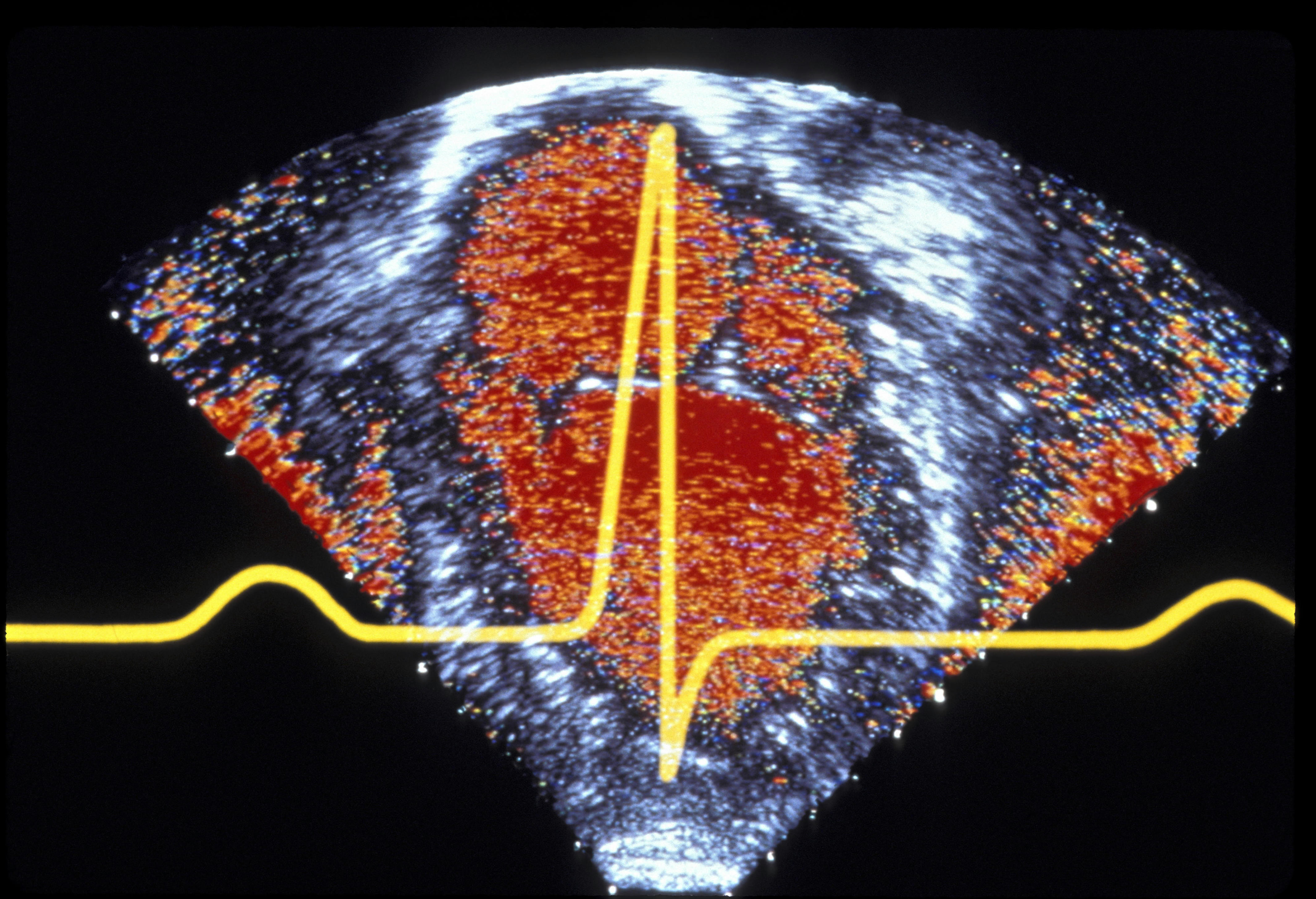 ABSTRACT OF HEART ACTIVITY AS SHOWN BY ELECTROCARDIOGRAM & ECHOCARDIOGRAM. (DOPPLER)