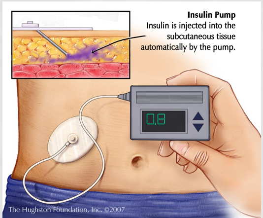 Insulin pumps are attached to a patient's body and release carefully calculated amounts of medicine.