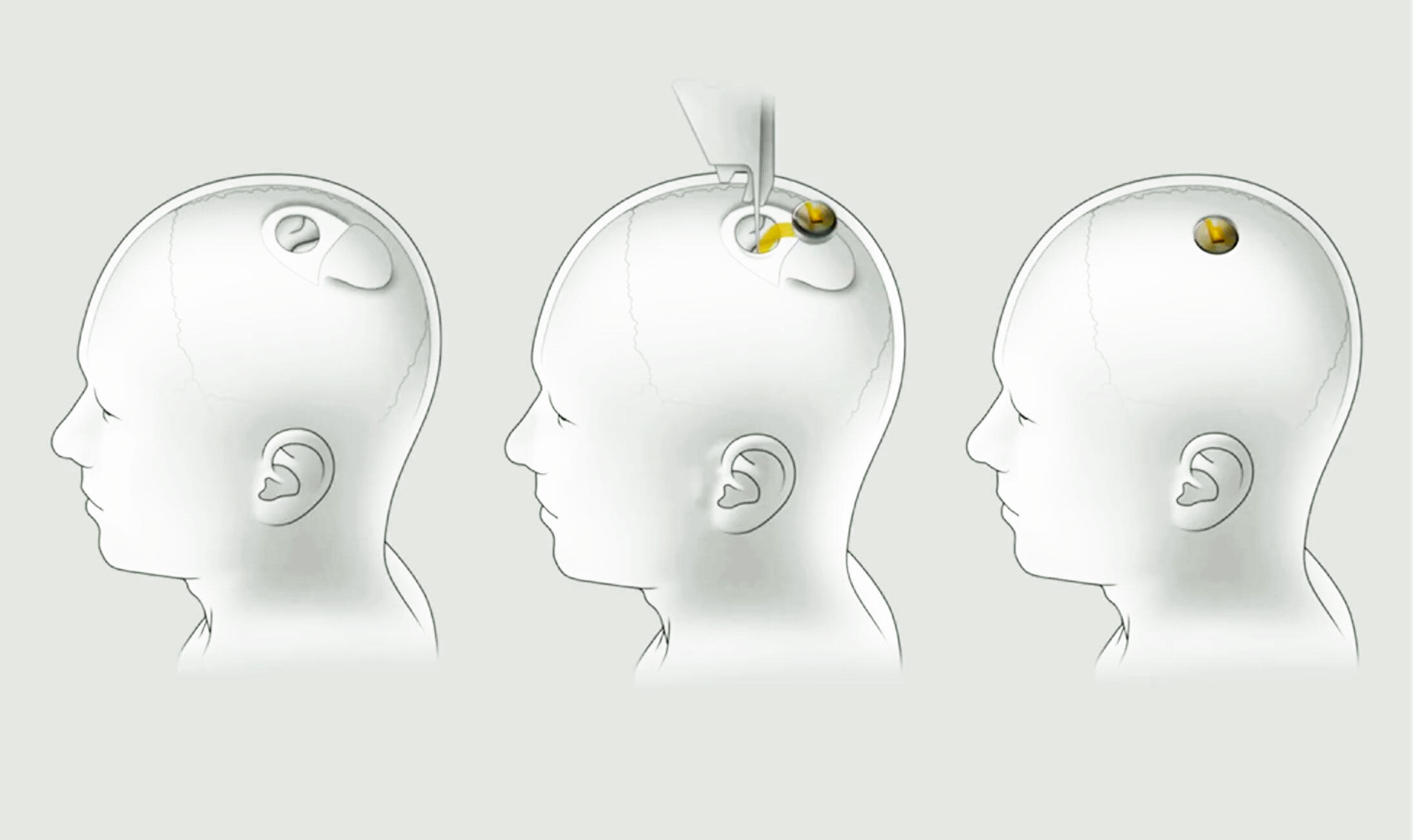 Neuralink's brain-machine interface technology sinks electrodes into the brain then uses a chip to communicate with computers outside your skull.
