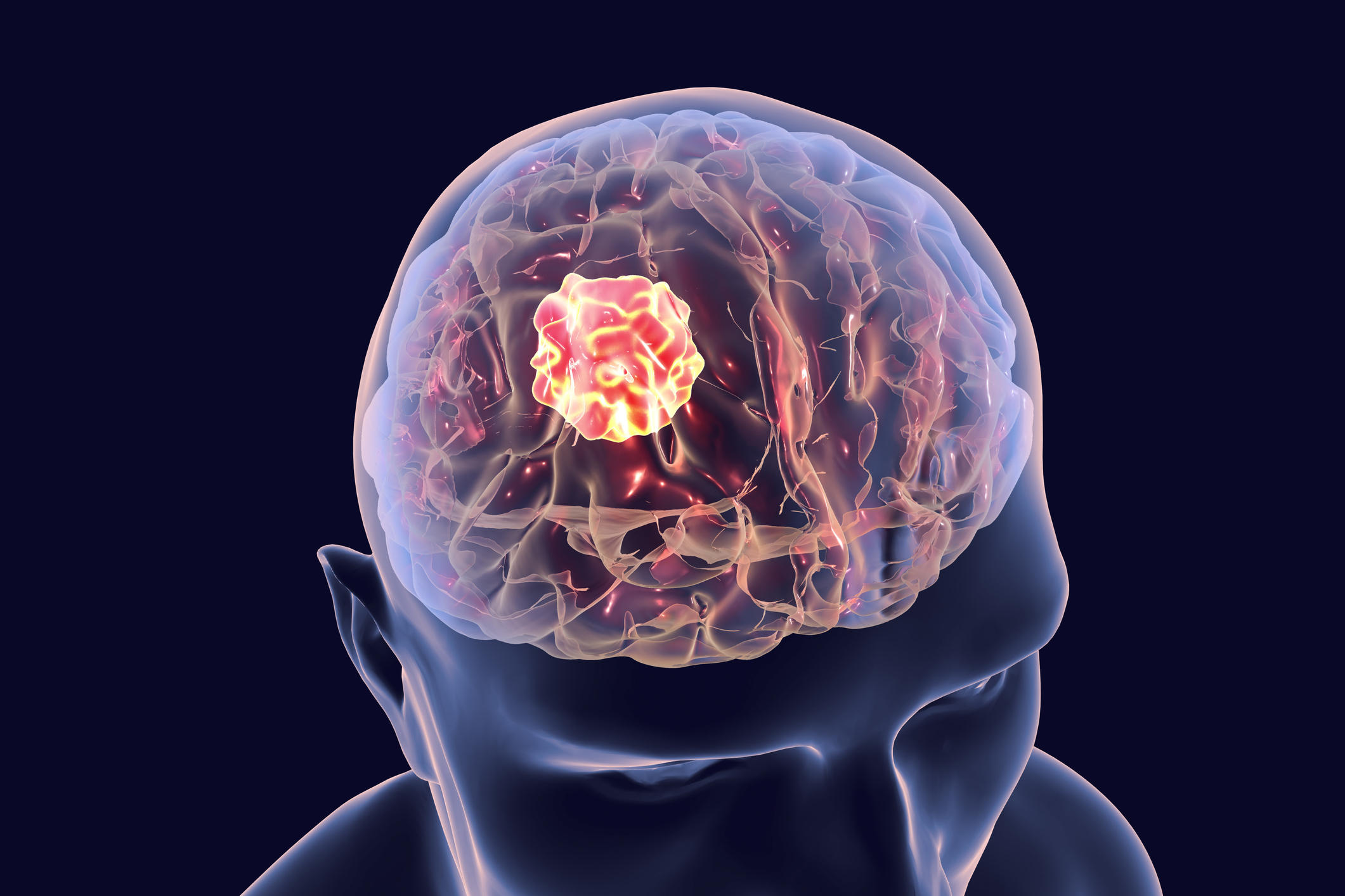 Brain cancer, illustration