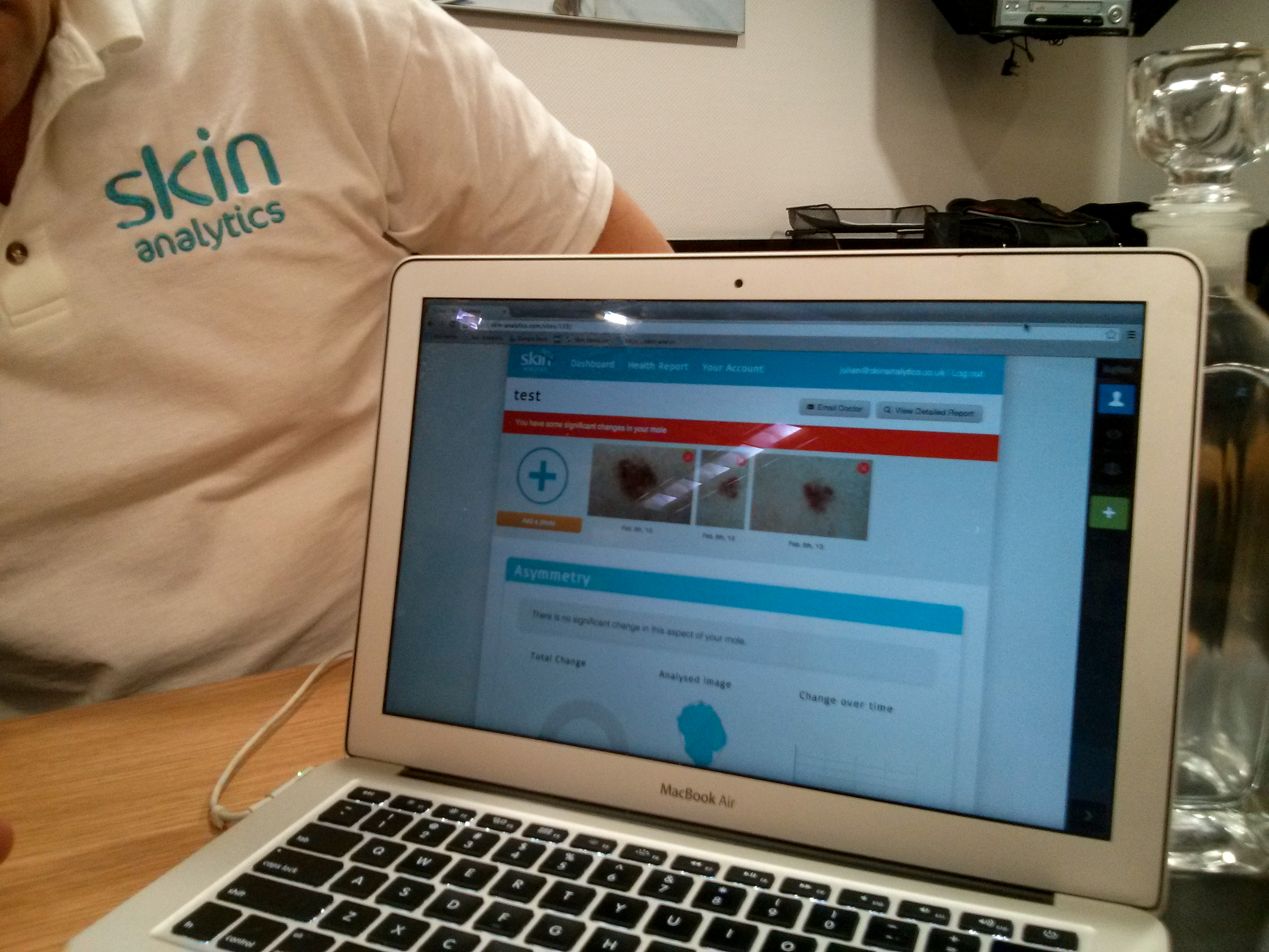 App detects cancerous skin lesions