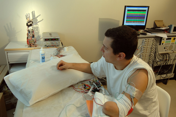 Pierpaolo Petruzziello's arm linked with electrodes to a robotic hand.