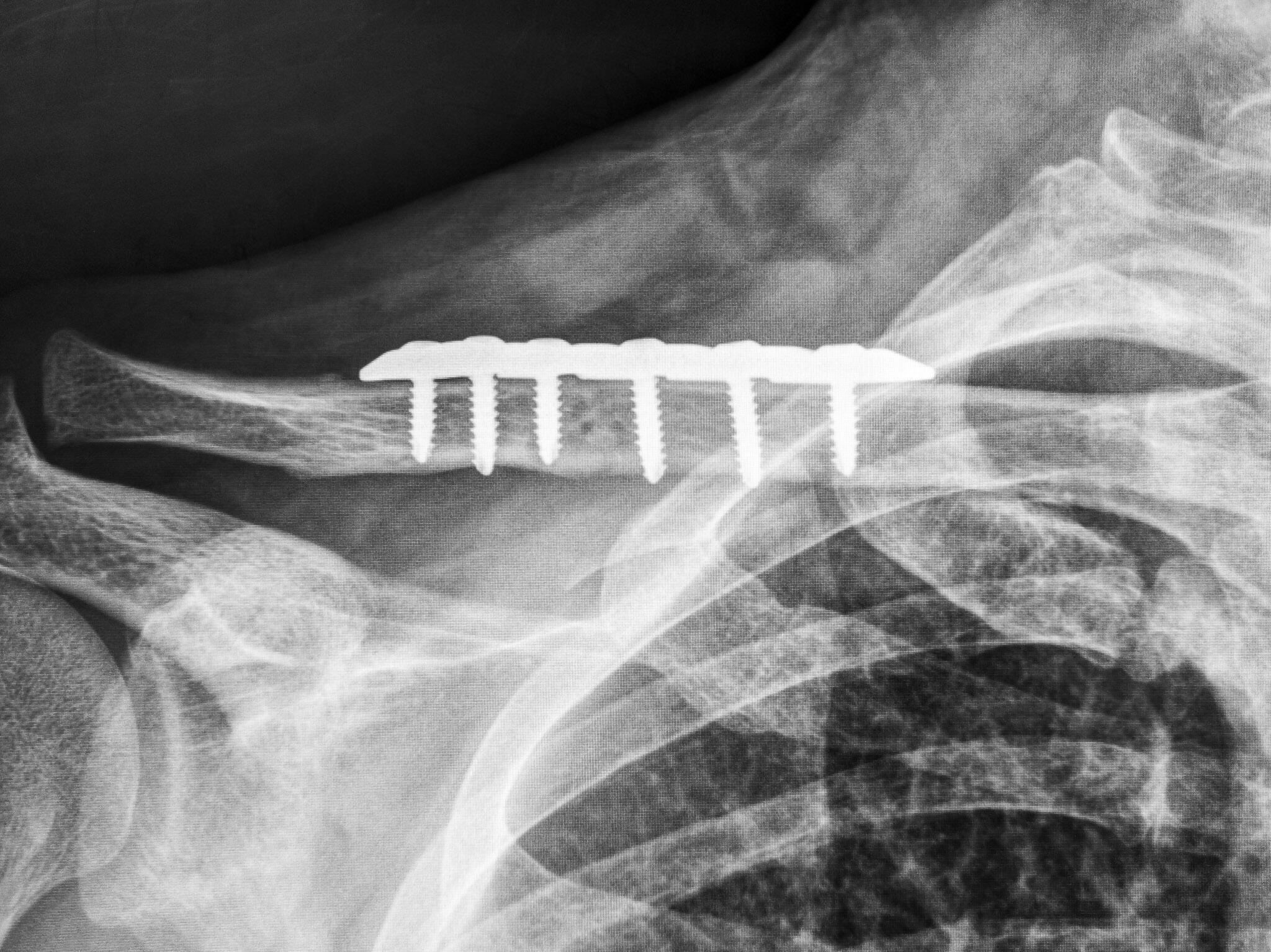 <p>Doctors repaired my collarbone with the stainless steel plate shown in this X-ray image.</p>