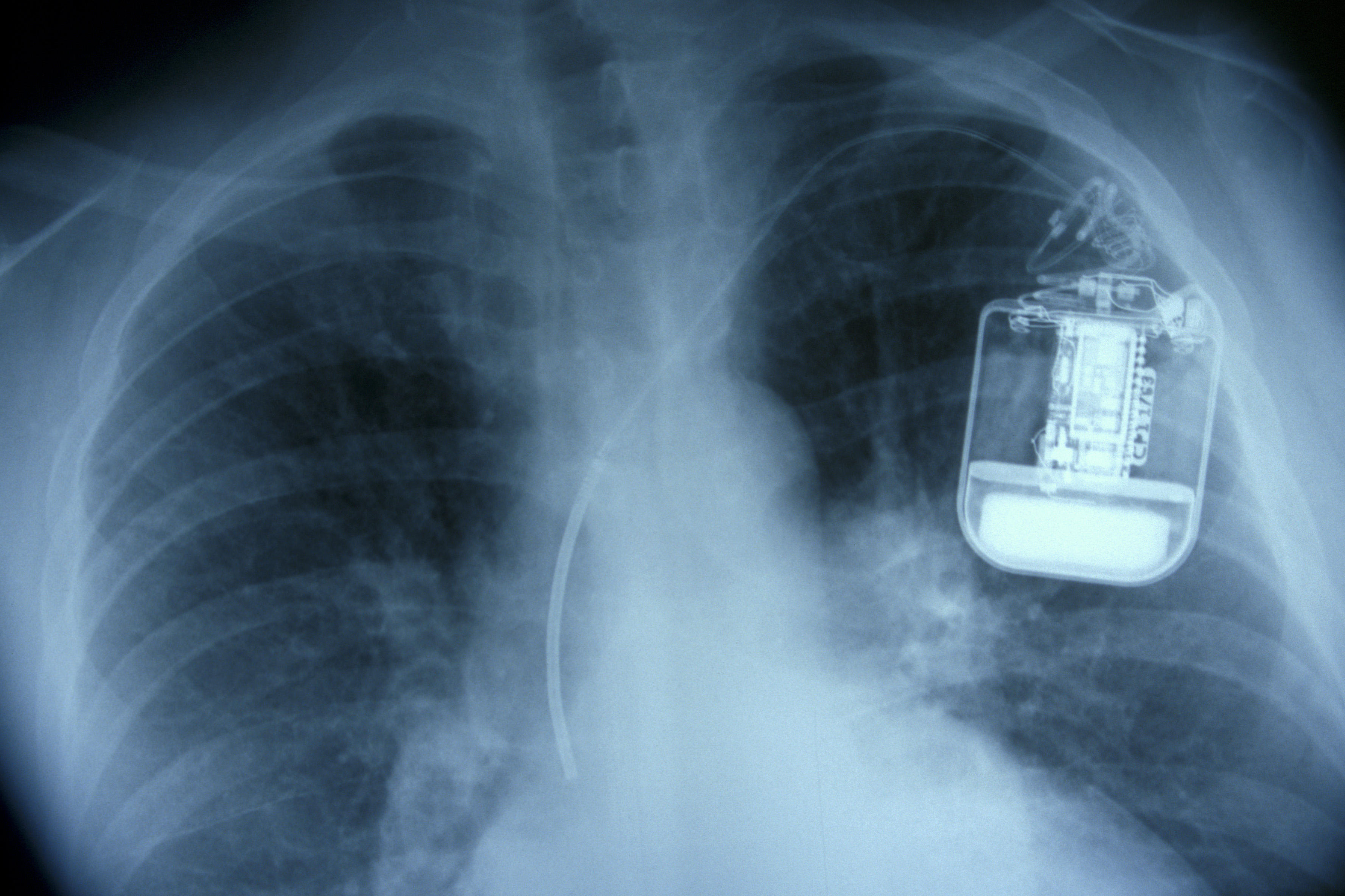 Lung X-Ray showing Pacemaker