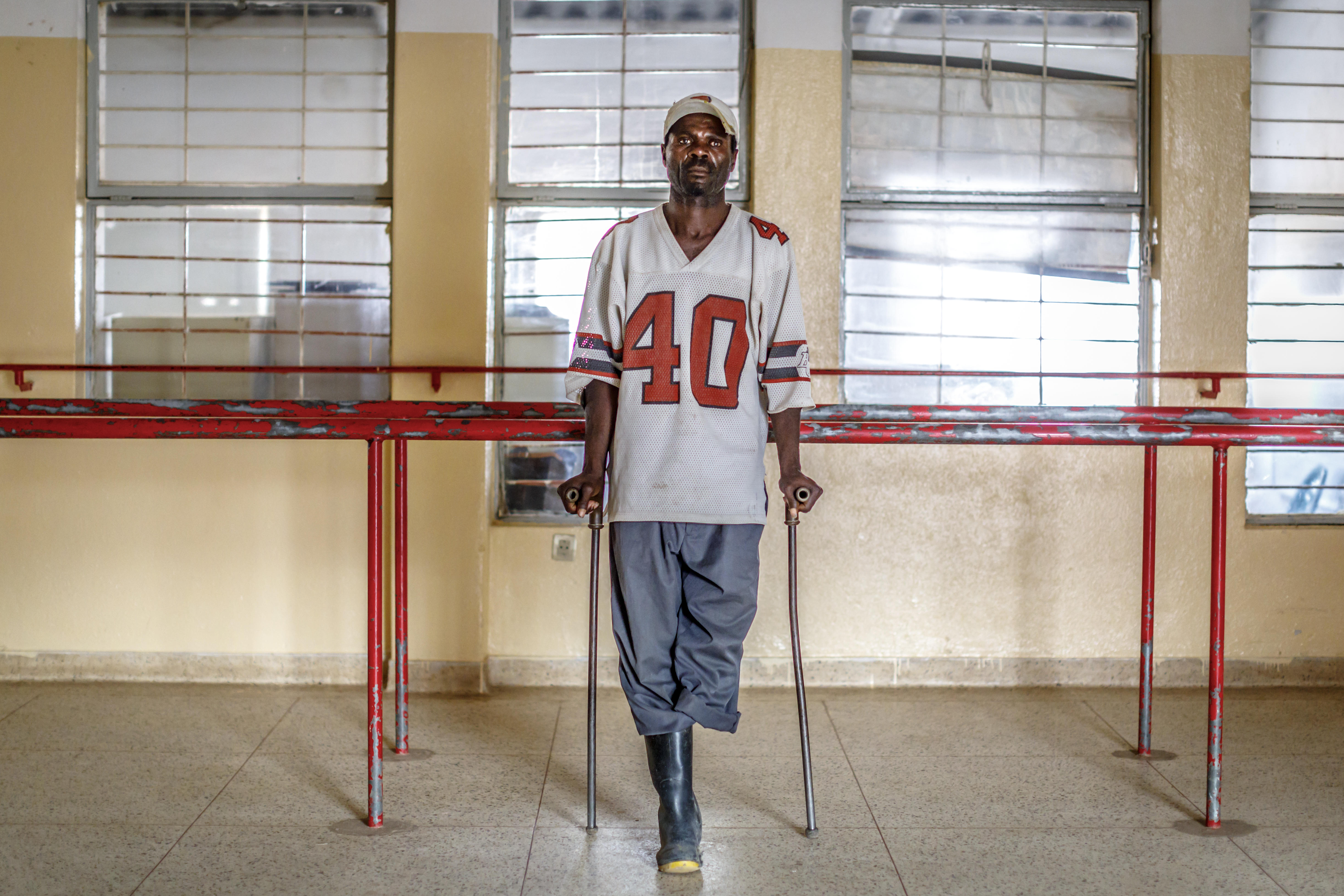 Abel Mbussolo still waits for a prosthetic leg after his first one was destroyed in a house fire. In 2012, he stepped on a trip wire while walking to farm his crops.