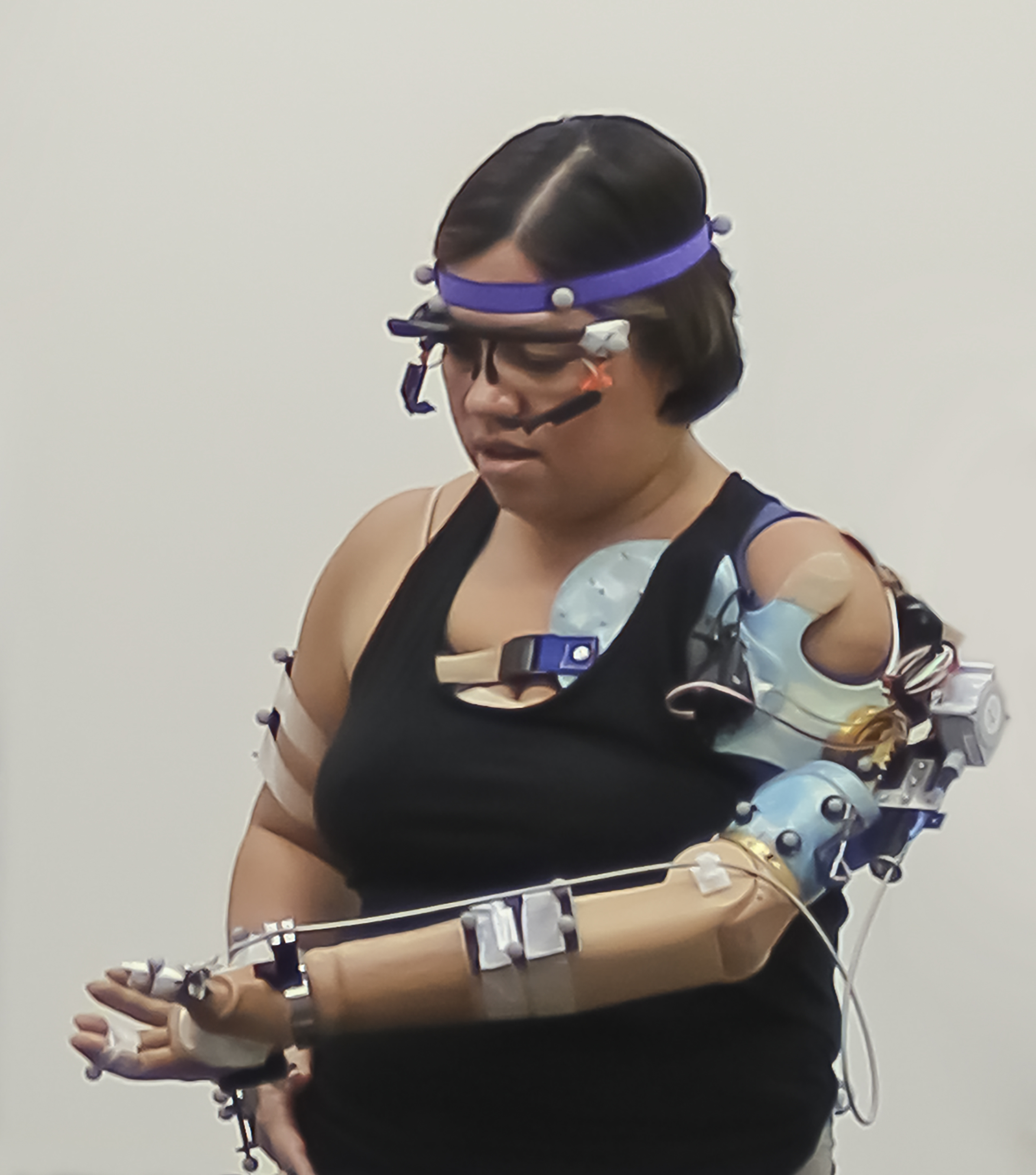person with bionic arm