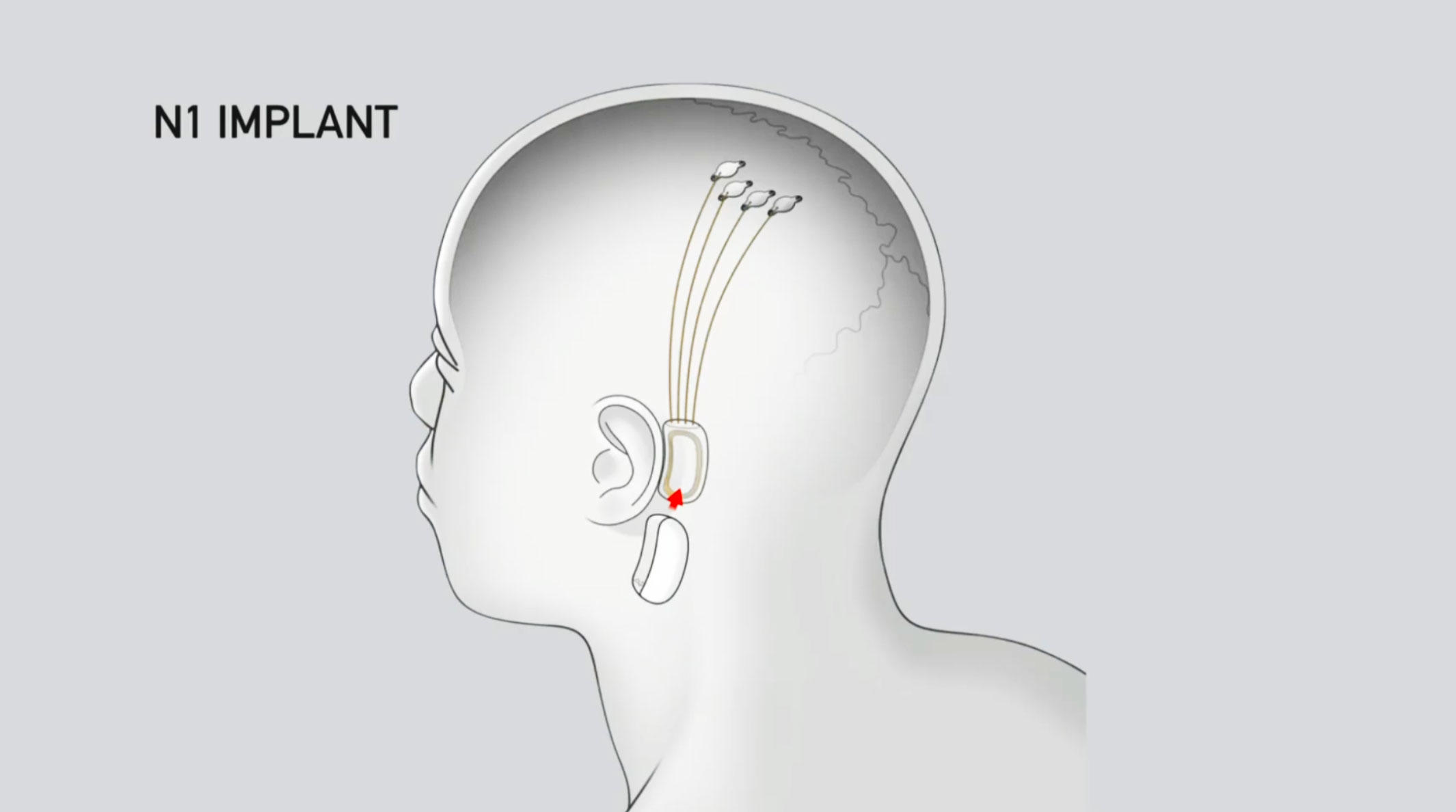 Neuralink plans to test its brain machine interface technology with four of its N1 chips installed under patients' skin.