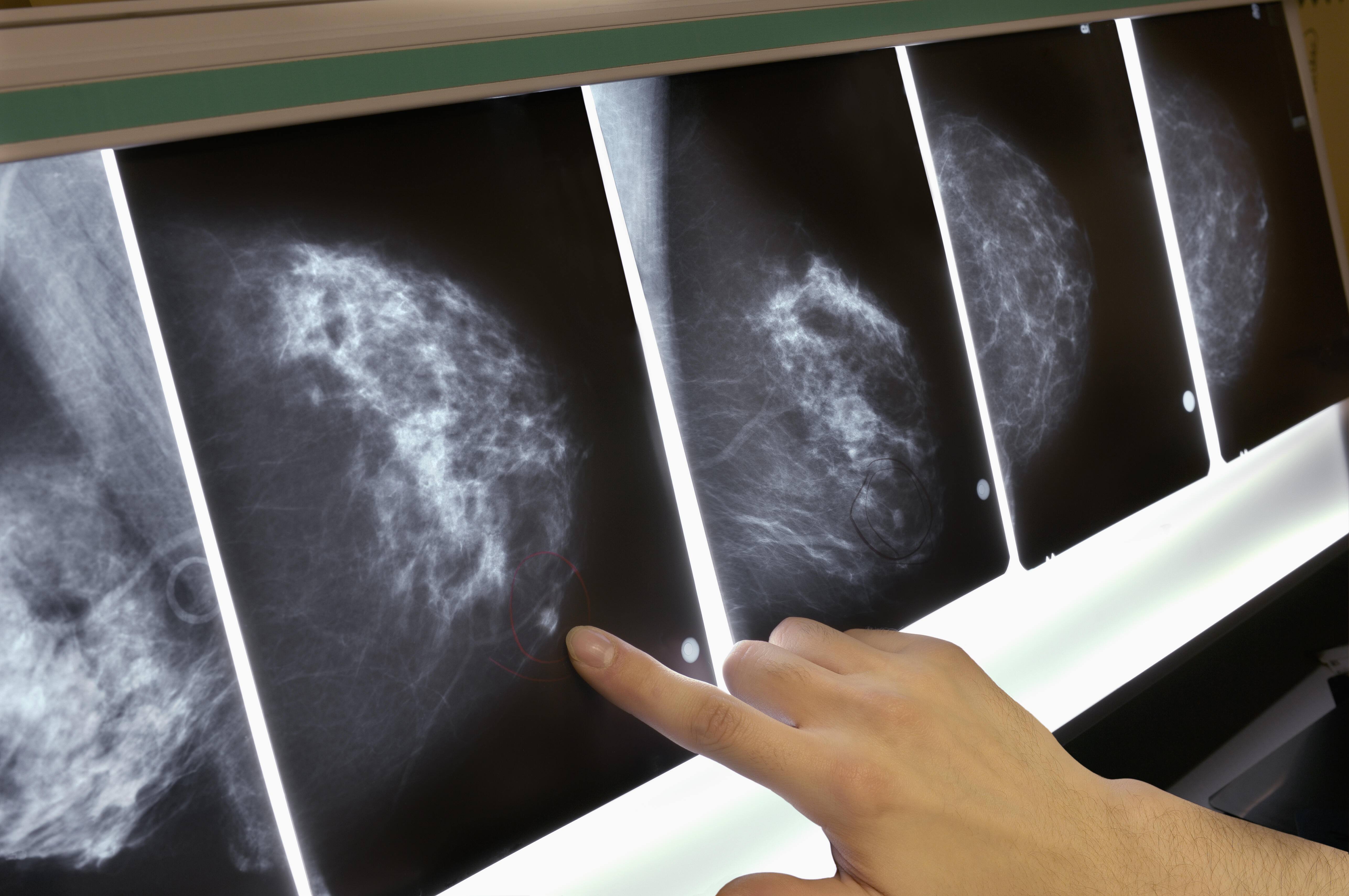 Close-up of a row of mammograms